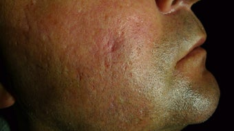 Juvederm filer to acne scar before 1469927