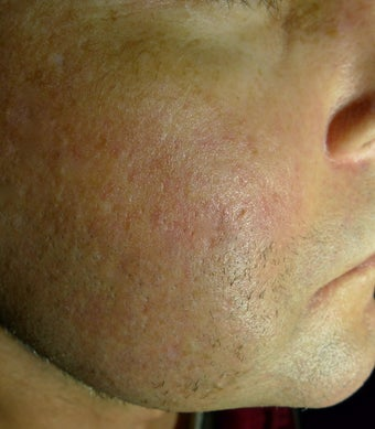 Juvederm filer to acne scar after 1469927