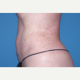 35-44 year old woman treated with Liposuction after 3644269
