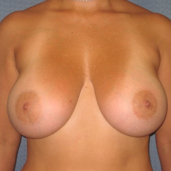 35-44 year old woman treated with Breast Augmentation after 1959407