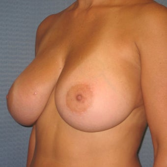 35-44 year old woman treated with Breast Augmentation 1959407