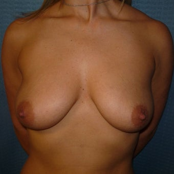 35-44 year old woman treated with Breast Augmentation before 1959407