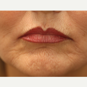 55-64 year old woman treated with Chemical Peel before 3646129