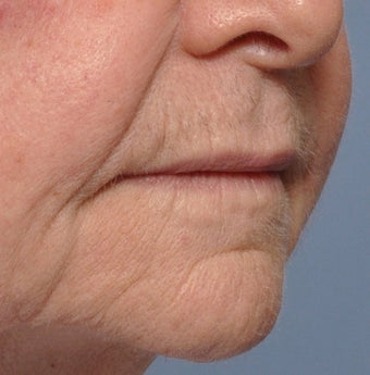 75 Year Old Female Treated For Thin Aging Lips 925514