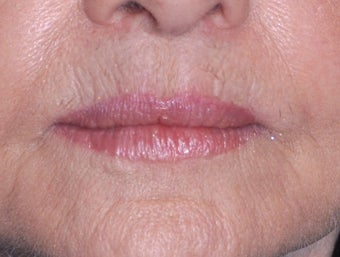 75 Year Old Female Treated For Thin Aging Lips after 925514