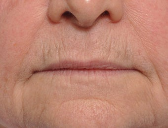 75 Year Old Female Treated For Thin Aging Lips before 925514