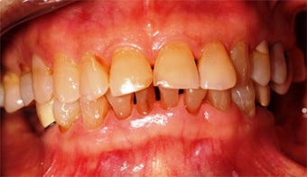 55-64 year old woman treated with Dental Implants before 3323007