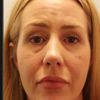 35-44 year old woman treated with Volbella to Rejuvenate Eye before 3592470