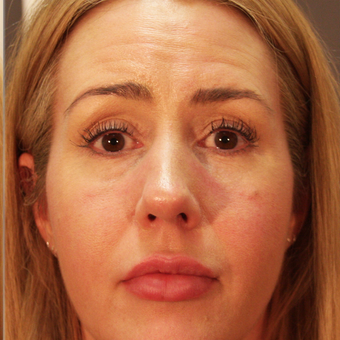 35-44 year old woman treated with Volbella to Rejuvenate Eye after 3592470