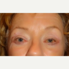 55-64 year old woman treated with Eye Bags Treatment after 3807335