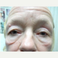 55-64 year old woman treated with Eye Bags Treatment before 3807335