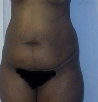 35-44 year old woman treated with Tummy Tuck before 2017377