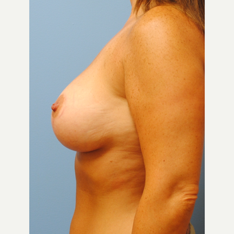 42 year old mother of 2 who had breast lift and 250 cc silicone implants after 3141729