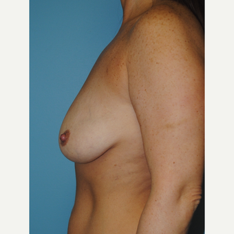 42 year old mother of 2 who had breast lift and 250 cc silicone implants before 3141729