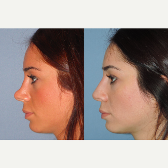 25-34 year old woman treated with Revision Rhinoplasty after 3521295