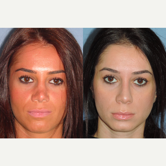 25-34 year old woman treated with Revision Rhinoplasty before 3521295