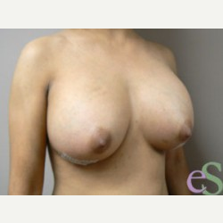 Breast Implant Revision after 3373499