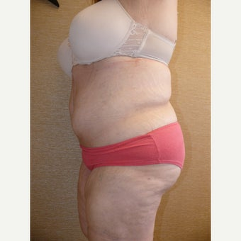 35-44 year old woman treated with Body Lift after 1650702