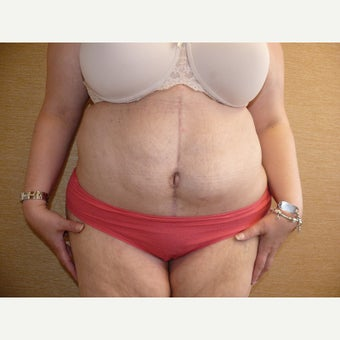 35-44 year old woman treated with Body Lift 1650702