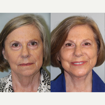 69 year old woman treated with Neck Lift before 3305890