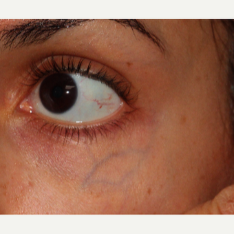 18-24 year old woman treated with CoolTouch Varia before 3149601