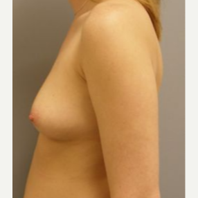 25-34 year old woman treated with Breast Implants before 3108126
