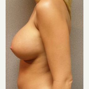25-34 year old woman treated with Breast Implants after 3108126