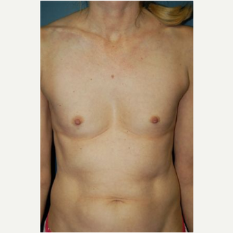 Breast Augmentation before 3720797
