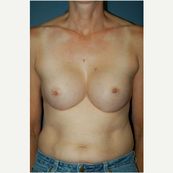 Breast Augmentation after 3720797