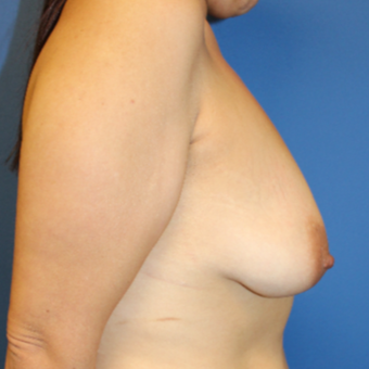 35-44 year old woman treated with Breast Lift with Implants before 3459343