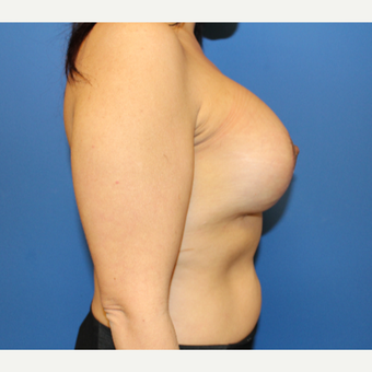 35-44 year old woman treated with Breast Lift with Implants after 3459343