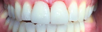 35-44 year old woman treated with Braces after 3031442