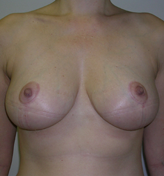 Breast Reduction after 1476913