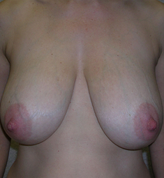 Breast Reduction before 1476913