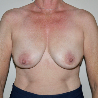 55-64 year old woman treated with Breast Implant Removal after 3579408