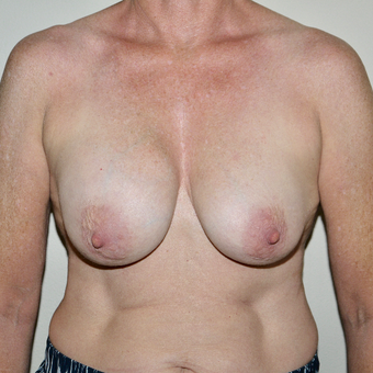 55-64 year old woman treated with Breast Implant Removal before 3579408
