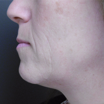 45-54 year old woman treated with Ultherapy before 3808671