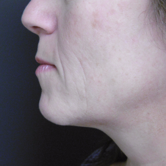 45-54 year old woman treated with Ultherapy after 3808671