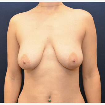 35-44 year old woman treated with Breast Lift with Implants before 3726879