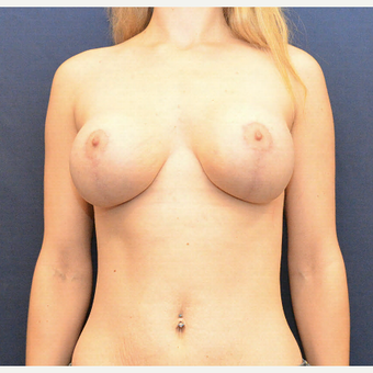 35-44 year old woman treated with Breast Lift with Implants after 3726879
