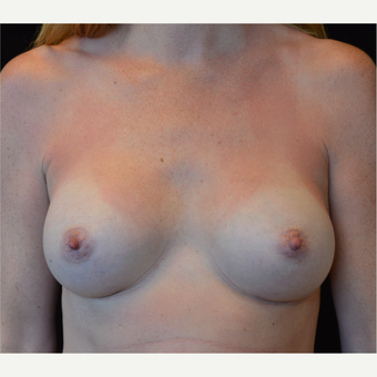 25-34 year old woman treated with Breast Augmentation after 3686949