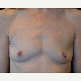 25-34 year old woman treated with Breast Augmentation before 3686949