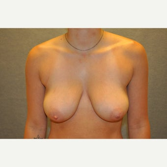 18-24 year old woman treated with Breast Reduction before 2218205