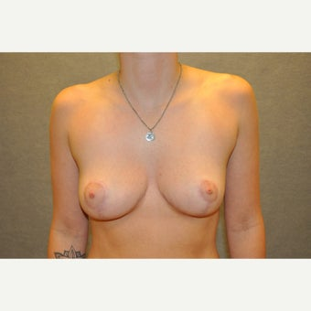 18-24 year old woman treated with Breast Reduction after 2218205