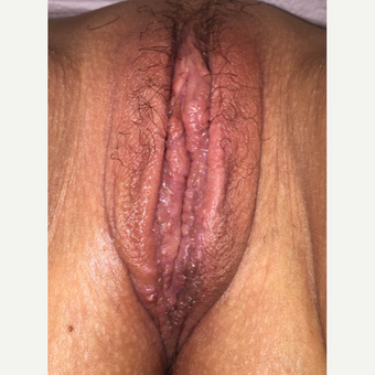 35-44 year old woman treated with Labiaplasty after 3055919