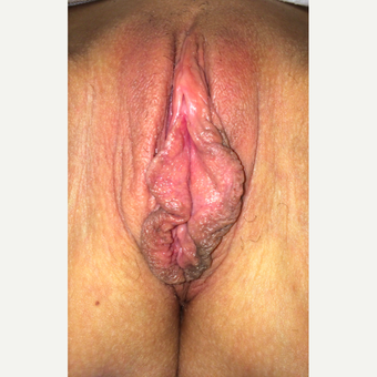 35-44 year old woman treated with Labiaplasty before 3055919