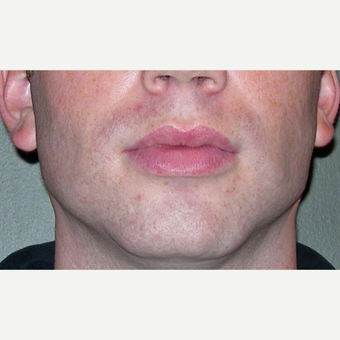 25-34 year old man treated with Chin Implant after 3611979
