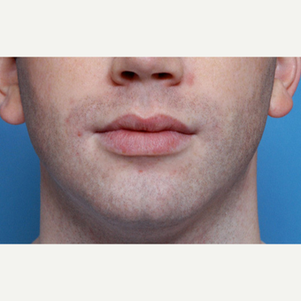 25-34 year old man treated with Chin Implant before 3611979