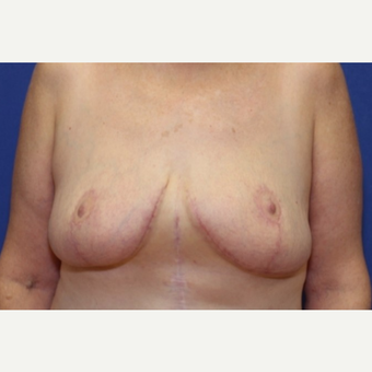 61 year old woman with a Breast Lift with slight reduction, left breast larger than right after 3541710
