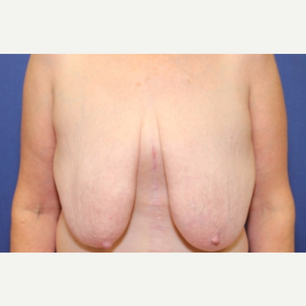 61 year old woman with a Breast Lift with slight reduction, left breast larger than right before 3541710